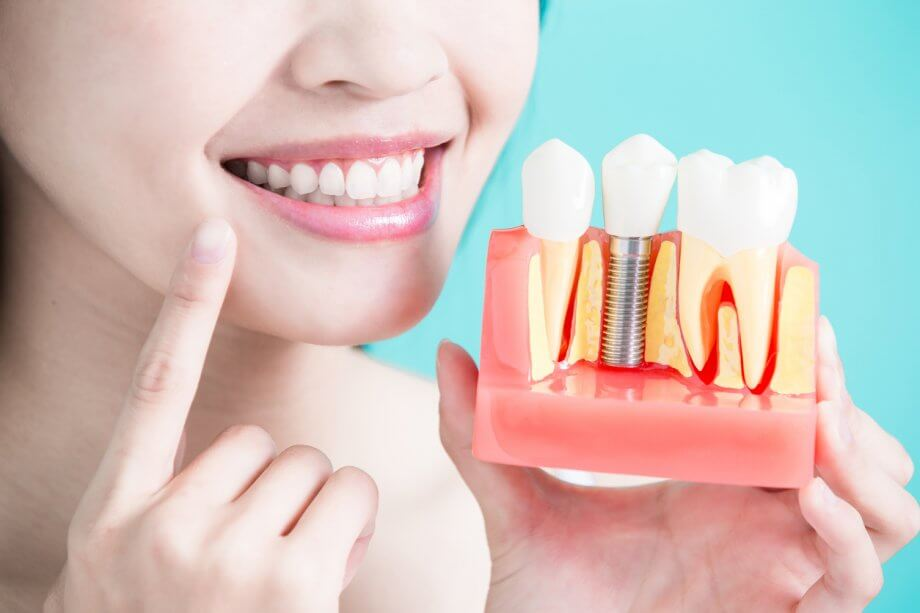 Female Patient Holding Up Dental Implant Model